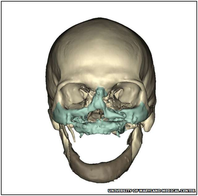 Extensive-Face-Transplant-2