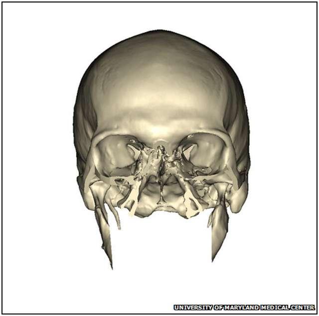 Extensive-Face-Transplant-3