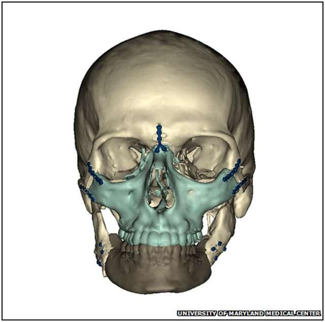 Extensive-Face-Transplant-4