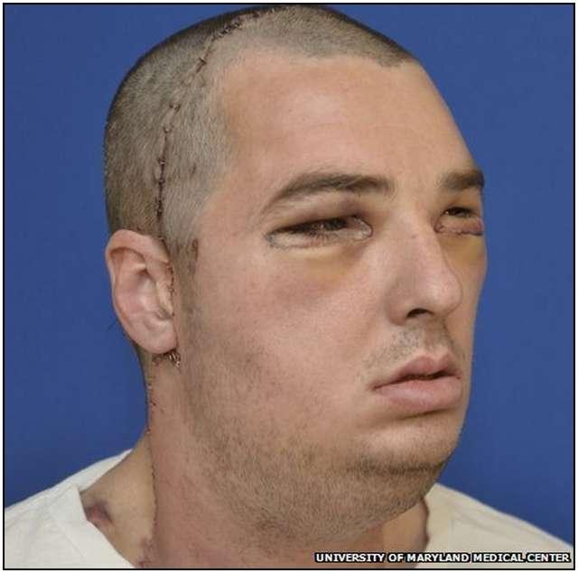 Extensive-Face-Transplant-5