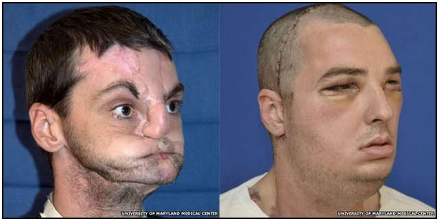 The Most Extensive Face Transplant in History
