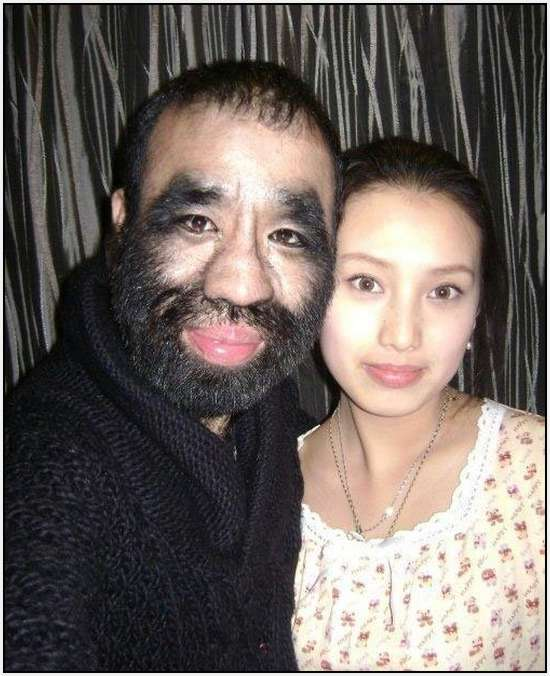 Most-Hairy-Chinese-6