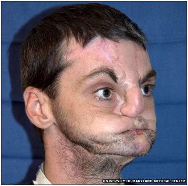 Extensive-Face-Transplant-1